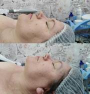 Альтернатива ботоксу и пластике - миофасциальный массаж лица